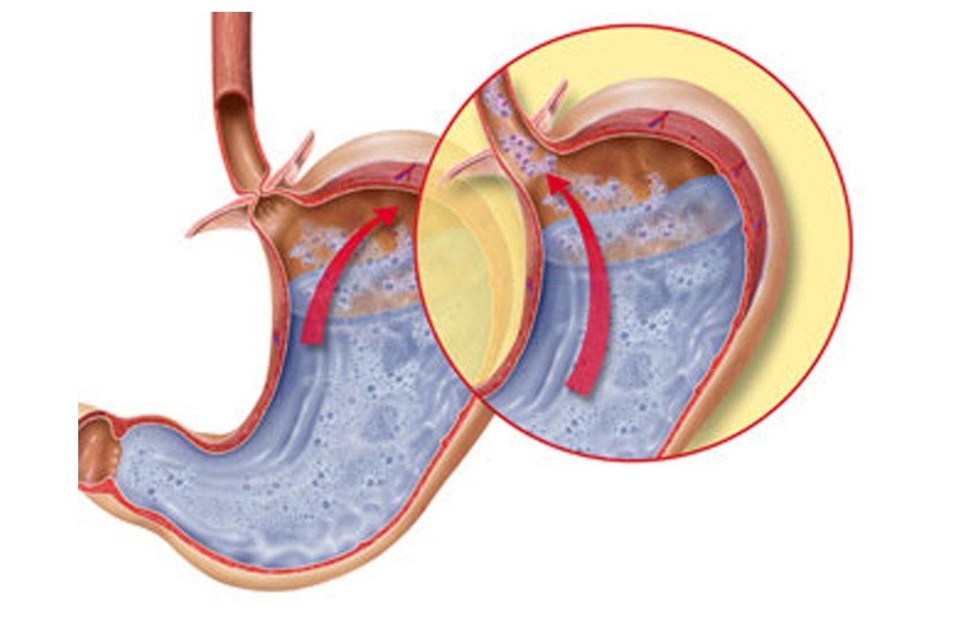Эрозивный эзофагит пищевода: лечение, симптомы, диета
